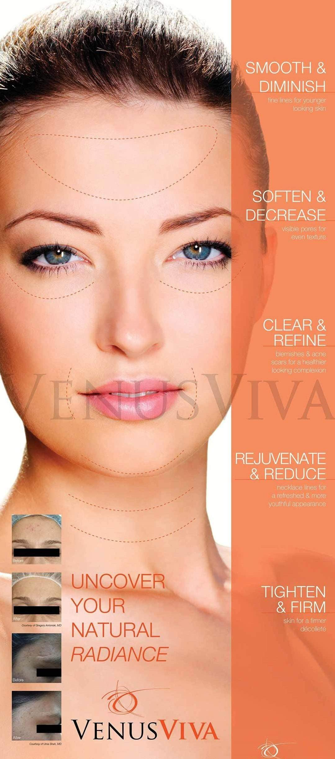 AgeLess InSkin Laser & Body Venus Viva Diamond Polar RF