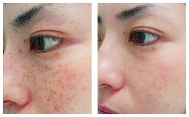 AgeLess InSkin Laser & Body Color Correction
