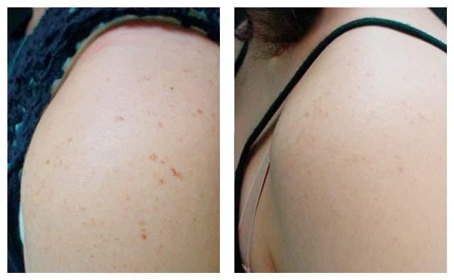 AgeLess InSkin Laser & Body Venus Concepts Spot Removal