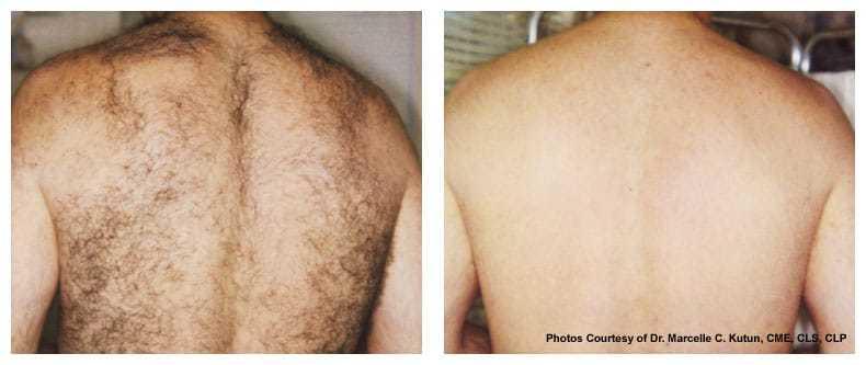 AgeLess InSkin Laser & Body Candela Laser Hair Removal Back Hair Removal