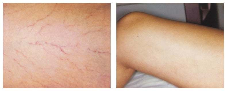 AgeLess InSkin Laser & Body Venus Concepts Spider Vein Removal