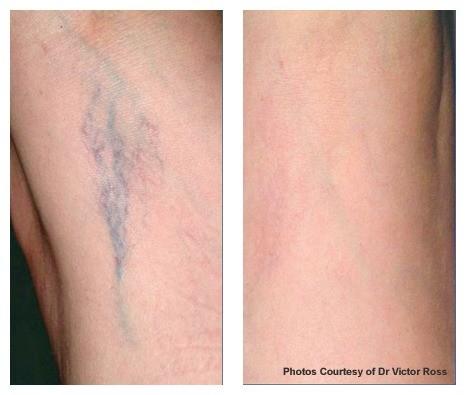 AgeLess InSkin Laser & Body Laser Med Spa Venus Concepts Vein Treatment