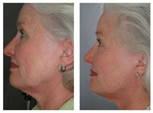 AgeLess InSkin Laser & Body Venus Concepts Legacy and Diamond Polar Skin Tightening