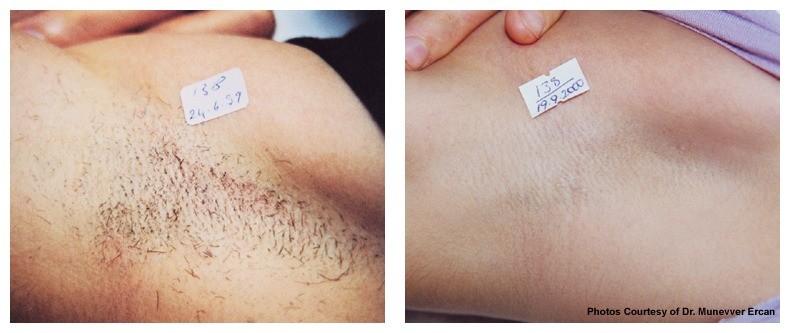 AgeLess InSkin Laser & Body Candela Laser Hair Removal Under Arm Hair Removal