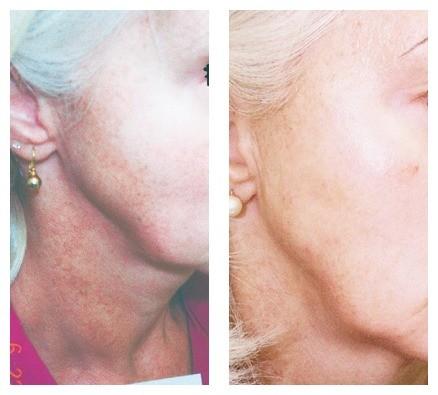 AgeLess InSkin Laser & Body Venus Concepts Color Correction