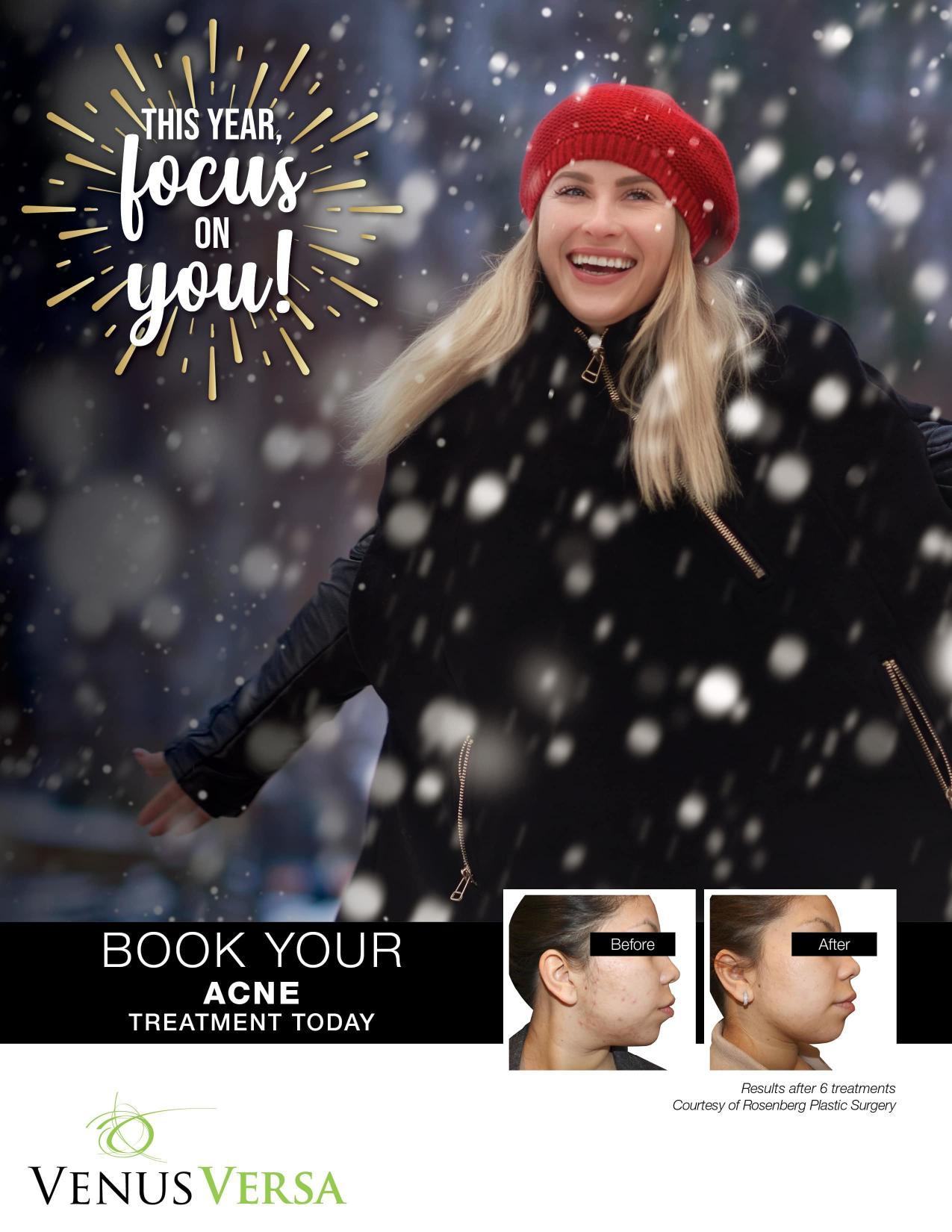 Acne Reduction With Venus Versa