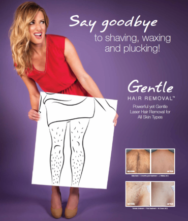 Laser Hair Removal With Gentle Max